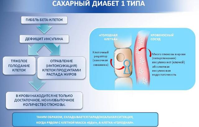 Сахарный диабет: симптомы, типы, стадии и методы диагностики