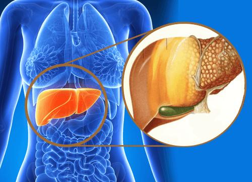 Саркома печени: провоцирующие факторы, клинические признаки, диагностика и тактика лечения, прогноз