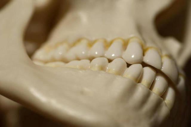 Щелкает челюсть при жевании и открытии рта: что это означает, к какому врачу обратиться?