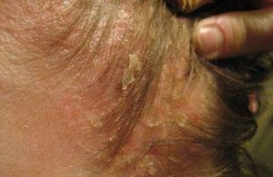 Себорейный дерматит — лечение лица, волосистой части головы и туловища