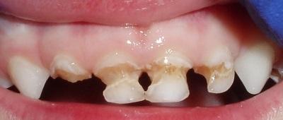 Серебрение зубов у детей при кариесе молочных зубов: что это, фото до и после, отзывы врачей и родителей