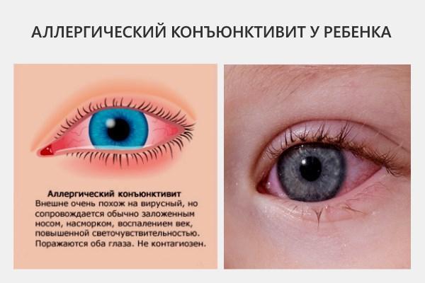 Симптомы аллергического конъюнктивита у ребёнка: подробные фото, эффективное лечение в домашних условиях