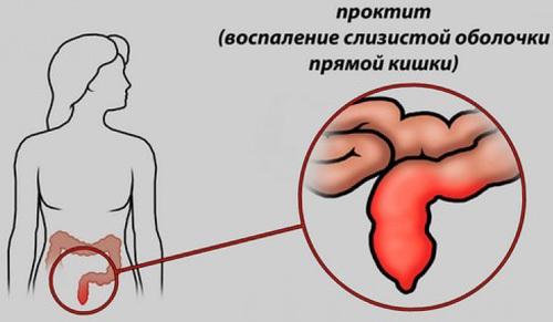 Симптомы и лечение проктита, методы диагностики