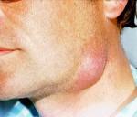 Симптомы и методы лечения подчелюстной, паховой и шейной аденофлегмоны