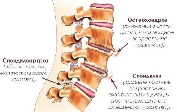 Симптомы спондилеза пояснично-крестцового отдела позвоночника и современное лечение заболевания