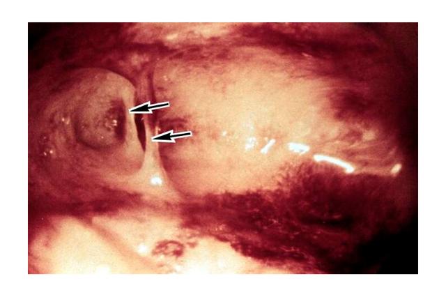 Синдром Ашермана: причины возникновения, клиническая картина, принципы лечения и профилактика