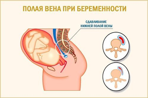 Синдром нижней полой вены: что это такое?