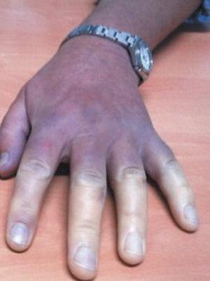 Синдром Рейно: провоцирующие факторы, клинические проявления, лечение препаратами и народными средствами