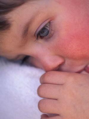 Скарлатина у детей: отличительные признаки, инкубационный период и методы лечения заболевания с подробными фото