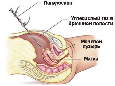 Спайки малого таза: характеристика патологии, основные клинические проявления, диагностика и методы лечения, профилактика