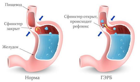 Спазмы в желудке: причины возникновения, характерные проявления, тактика лечения и принципы диеты