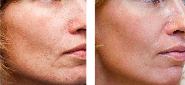 SPRS-терапия: преимущества и недостатки, особенности процедуры, правила проведения омоложения кожи