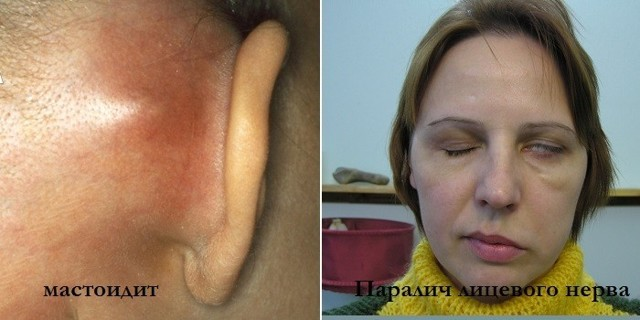 Средний отит уха у детей и взрослых: признаки, диагностика, методы лечения и профилактики