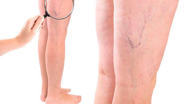 Судороги в ногах: почему начинаются и как лечить в домашних условиях