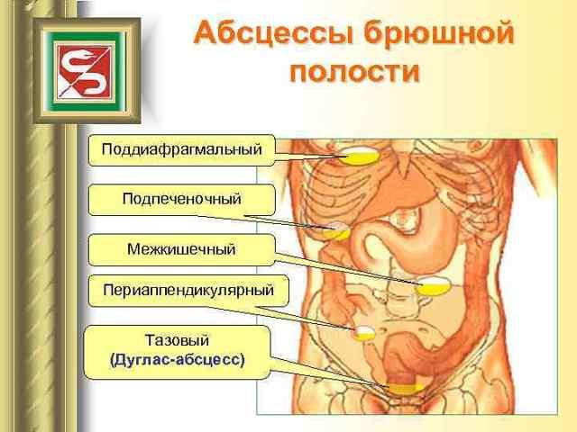 Тазовый абсцесс дугласова пространства: факторы риска развития, сопутствующие симптомы, принципы лечения и возможные осложнения