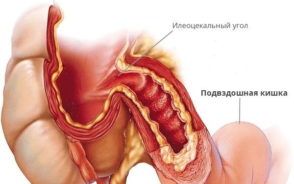 Терминальный илеит (воспаление тонкой кишки), почему началось и как остановить?