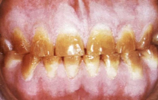 Тетрациклиновые зубы: общее понимание сути проблемы, методы лечения и отбеливания