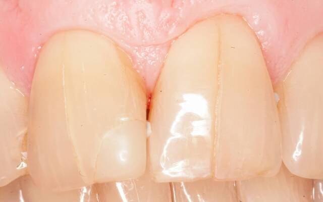 Трещины на зубах: причины появления и виды, способы лечения и профилактики