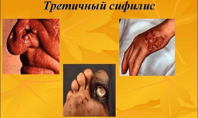 Третичный сифилис: механизм развития, сопутствующие симптомы, диагностика и методы лечения