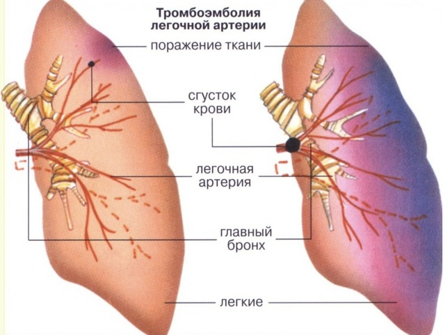 Тромбоэмболия сосудов головного мозга: причины развития, характерные признаки, методы терапии и меры профилактики