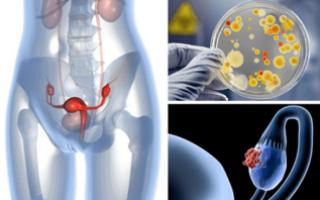Трубно-перитонеальное бесплодие: самая частая причина возникновения