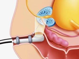 ТРУЗИ предстательной железы: что это, как подготовится, насколько эффективный для диагностики