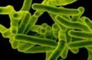 Туберкулез половых органов у женщин: как проявляется и что может стать причиной?