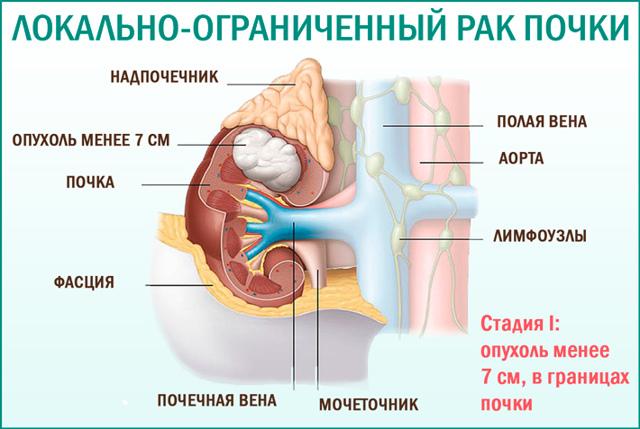 Тубулярный рак почки: клиническая картина, диагностика и тактика лечения, срок жизни