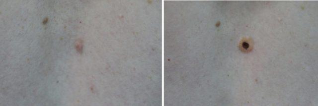Удаление папиллом и бородавок: долго ли заживают раны после процедуры?