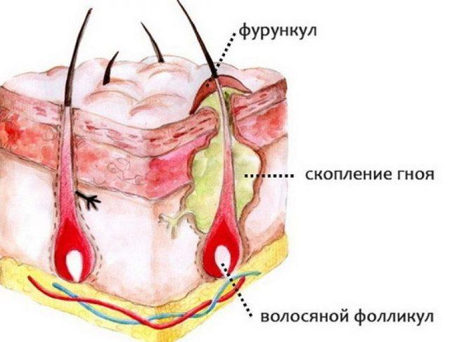 Уплотнение под мышкой у женщин: о чем говорит симптом, к какому врачу обращаться?