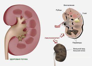 Уреаплазма, микоплазма – 2 главных коммерческих диагноза, исторические сведения, научные мнения и схемы диагностики и лечения