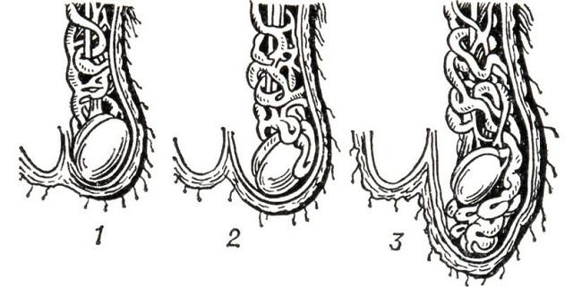 Варикоцеле – симптомы, причины развития, степени болезни и методы лечения