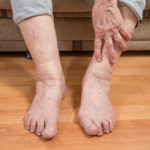 Варикоз вен: опух голеностопный сустав, проявляются вены, что делать?