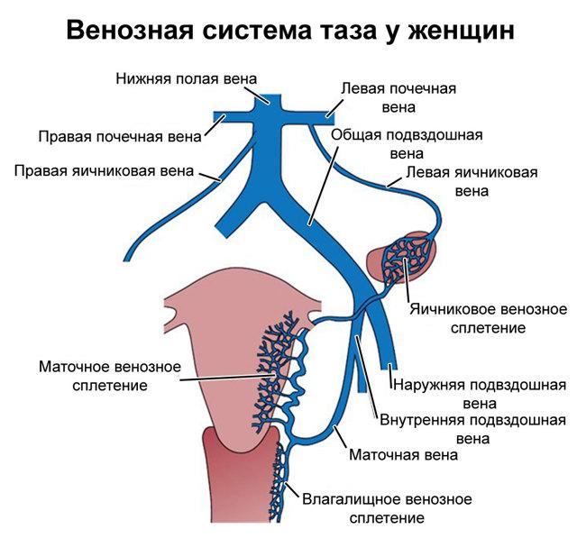 Варикозное расширение вен малого таза у женщин: симптомы, лечение и профилактика