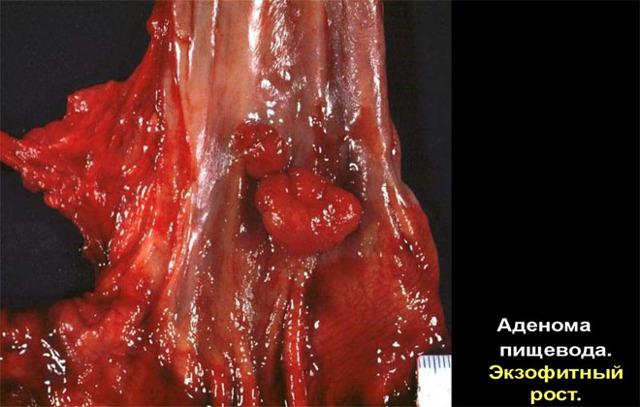 Варикозное расширение вен пищевода: степени развития заболевания, клинические проявления, тактика лечения и меры профилактики