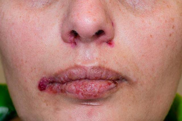 Вегетирующая пузырчатка: причины поражения, характерные проявления, дифференциальная диагностика и способы лечения
