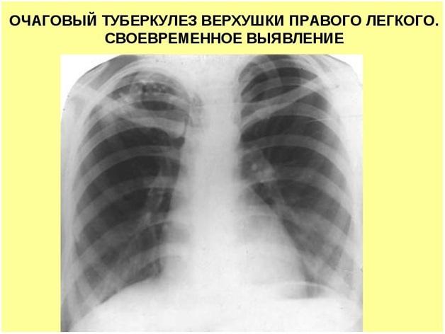 Виден ли туберкулез на флюорографии и какие методы диагностики туберкулеза наиболее эффективны