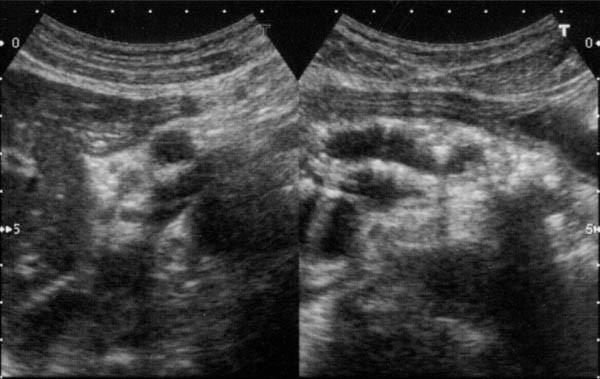 Вирсунголитиаз: механизм развития, характерные проявления, диагностика и принципы лечения