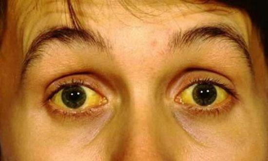 Вирусные гепатиты B и C: симптомы, причины, лечение парентеральных форм болезни