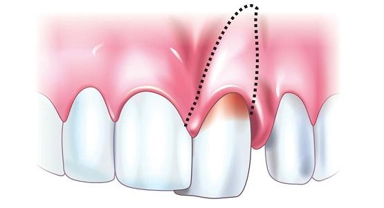 Вколоченный, полный и неполный вывих зубов: причины травм, характерные признаки, лечение и возможные осложнения