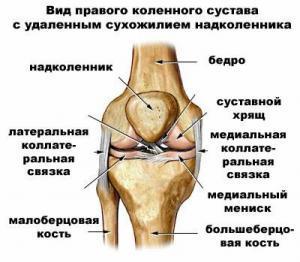 Внутрисуставной перелом: причины возникновения травмы, типичные признаки, тактика лечения и реабилитация