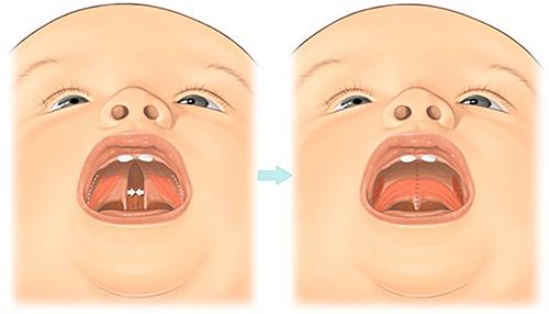 Волчья пасть у человека: факторы развития патологии, внутриутробное формирование дефекта, методика устранения расщелины нёба
