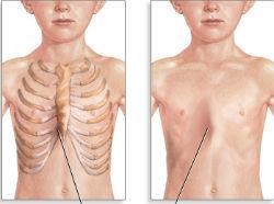 Воронкообразная грудная клетка у ребенка: причины и степени деформации, клиническая картина, способы лечения