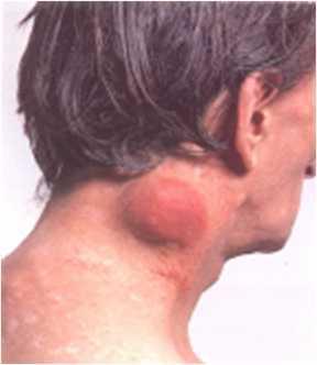 Воспалились паховые лимфоузлы: основные причины, вероятность ВИЧ, особенности лечения и возможные осложнения