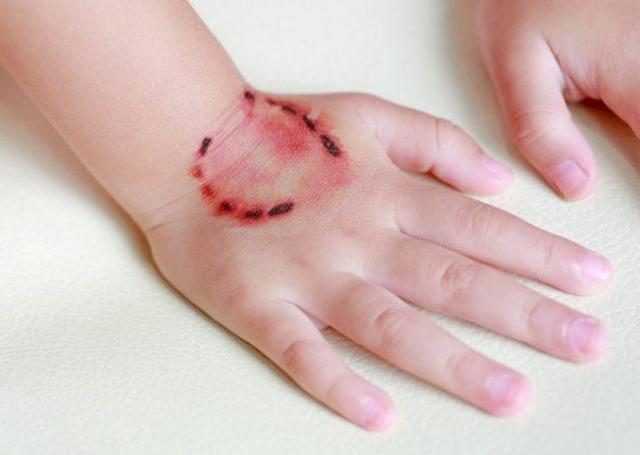 Возможно головокружение после прививки от бешенства?