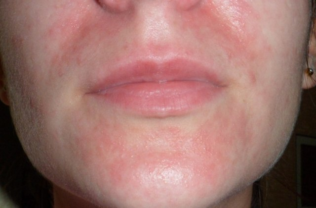 Возможны высыпания вокруг рта из-за декоративной косметики?