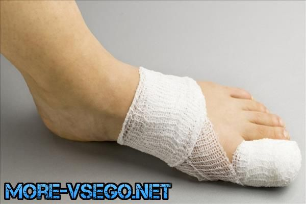Вросший ноготь на ноге: причины и лечение в домашних условиях