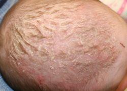 Врожденная аплазия кожи волосистой части головы у новорожденных: причины развития, сопутствующие симптомы, методы лечения