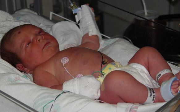 Врожденная цитомегаловирусная инфекция у новорожденных: пути заражения, характерные признаки, лечение и профилактика развития осложнений