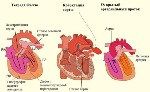 Врожденные пороки сердца и причины их возникновения, систематизация